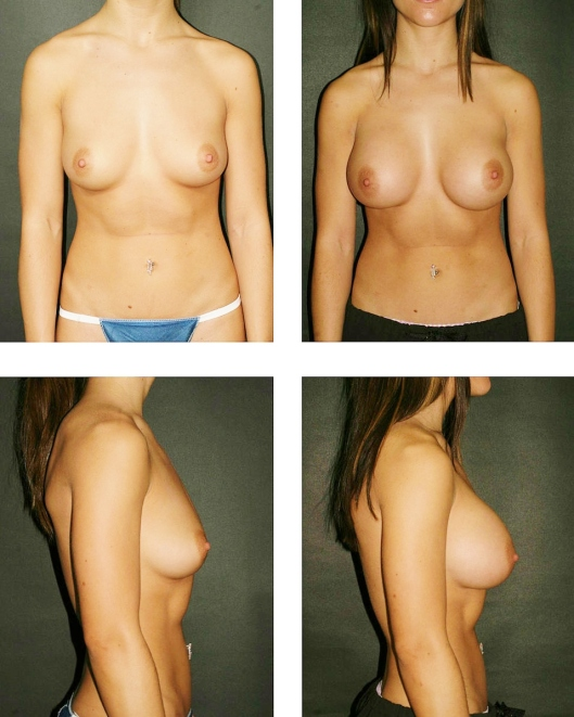 Bilateral breast augmentation, Saline, Moderate plus implants. Submuscular. Marked post-operative asymetry can be observed. (Source: Otto J. Placik, M.D.)